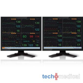 2800 Magzat Figyelő Rendszer betegfigyelő rendszer betegőrző rendszer